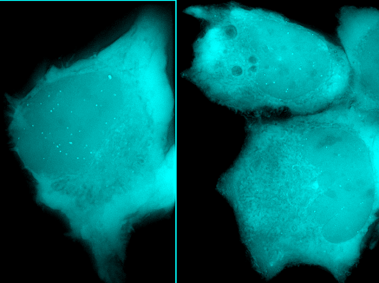 GFP spots in living cells